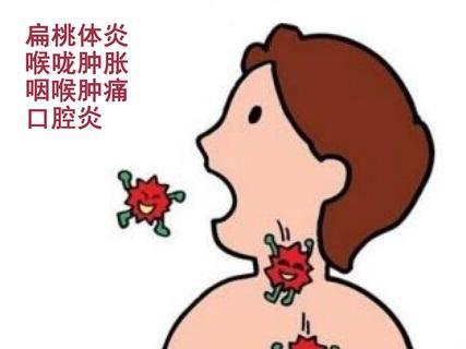 治疗扁桃体发炎的偏方